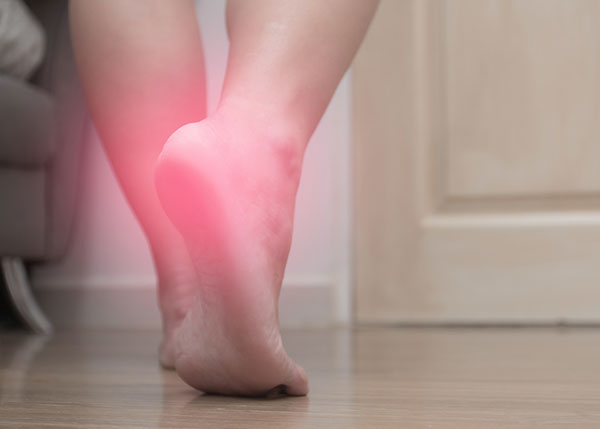 Plantar fasciitis highlighted in red on foot