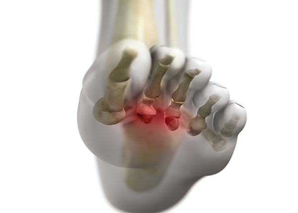 Neuroma between the third and fourth toes