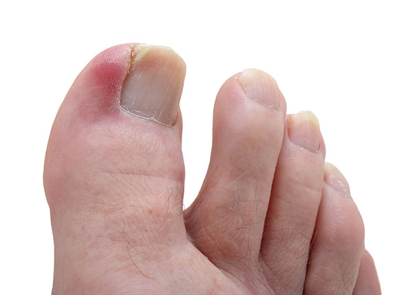 Ingrown toenail on the big toe