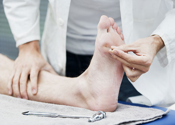 Doctor testing foot for neuropathy