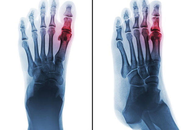 X-ray of human foot and arthritis