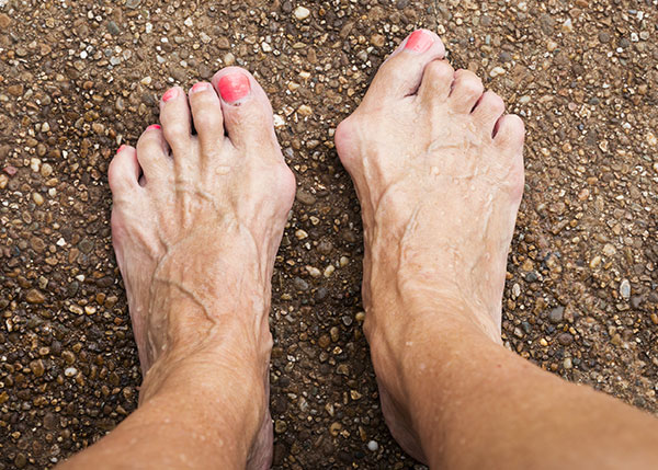 Bilateral bunions and hammertoes on woman's feet