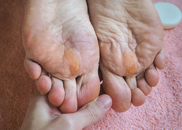 Calluses and corns on bottom of feet