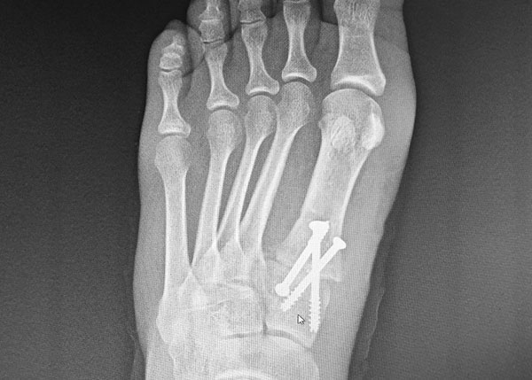 X-Ray of Foot with Screws after Surgery